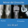 Protesi ginocchio