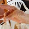 Post operatorio rizoartrosi mano chiusura 2 dito